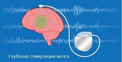 Схема метода стимуляции мозга в лечении болезни Паркинсона