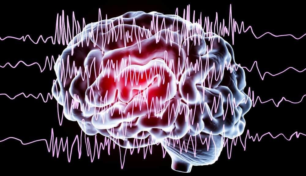 Виды эпилепсии. Формы и типы эпилептических припадков.