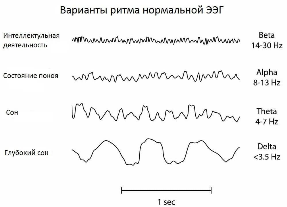 Физиологические ритмы мозга на ЭЭГ
