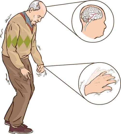 Мужчина сболезнью Паркинсона и тремором руки