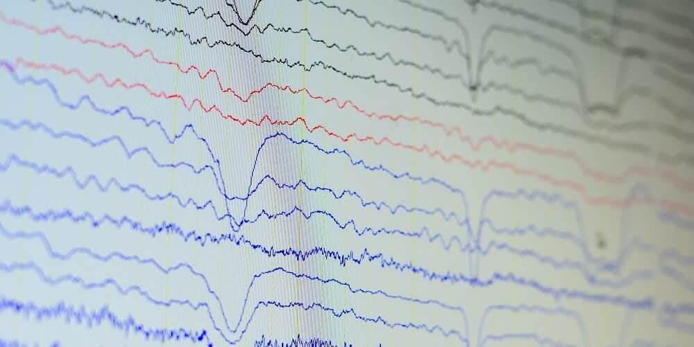 Вид волн электрической активности мозга на ЭЭГ