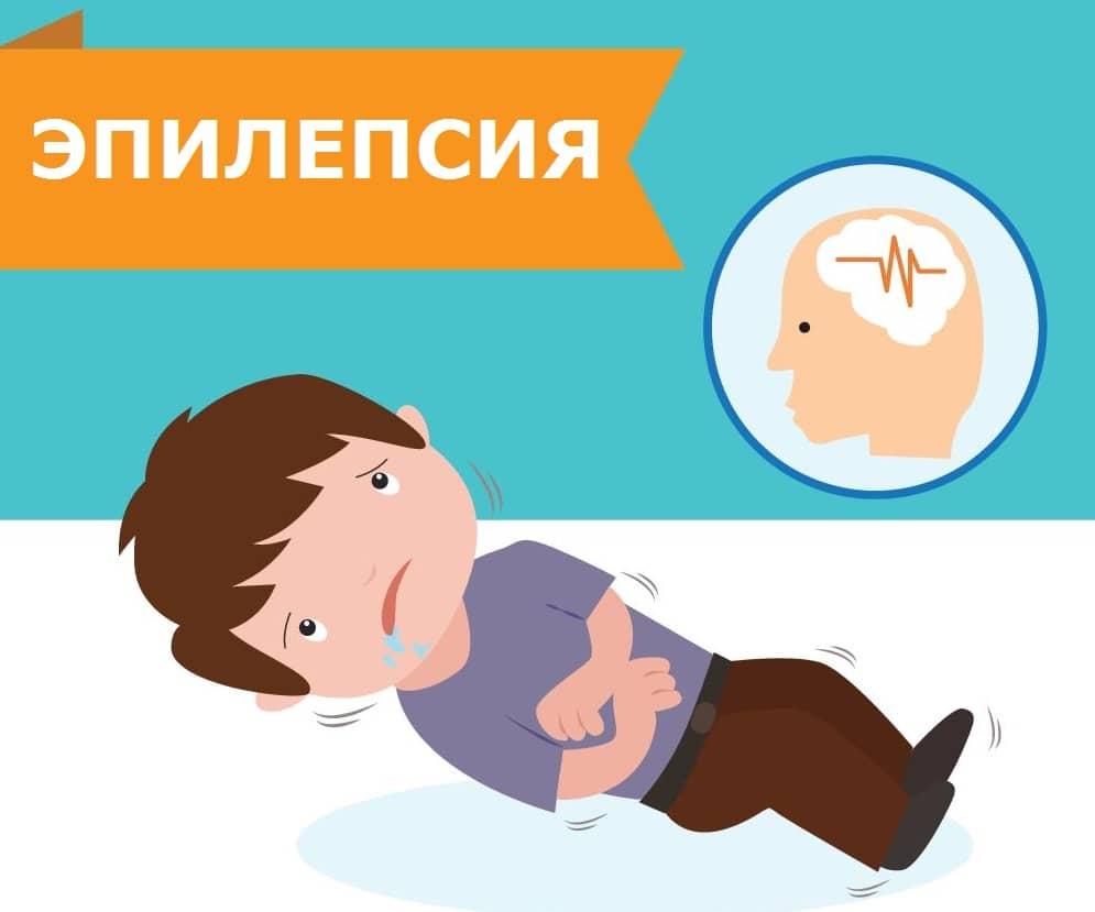 Эпилепсия у ребенка приступ судорог