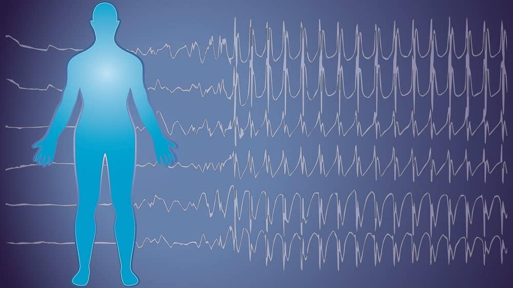 Эпилептическая активность мозга при эпилепии взрослых