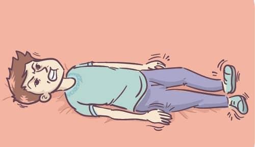 Миоклонический эпилептический приступ