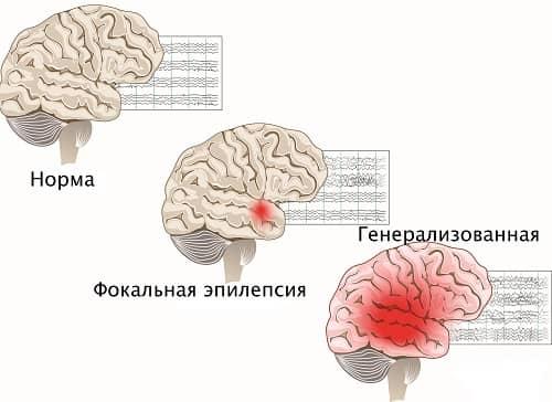 Норма и разновидности эпилепсии взрослых