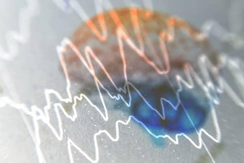 Очаги эпилепсии в коре головного мозга