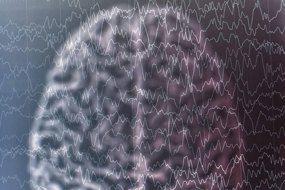 СХема электрической активности мозга при эпилепсии