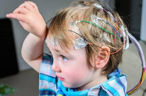 Запись ЭЭГ мониторинга у ребенка с эпилепсией