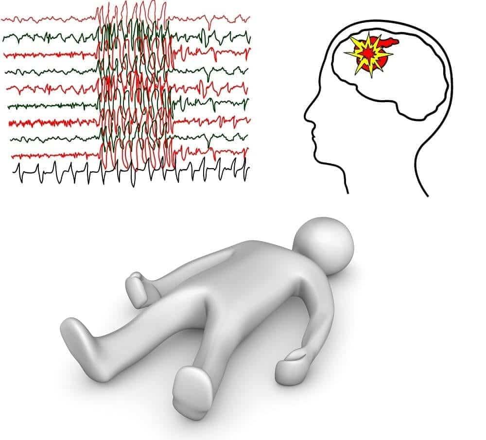 Как остановить приступ эпилепсии (неотложная помощь)