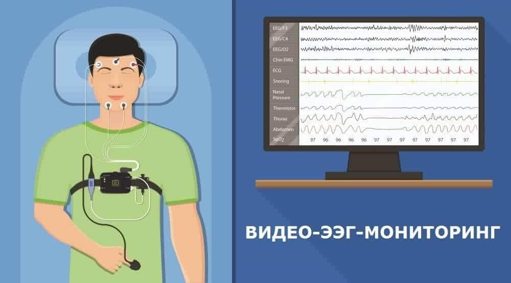 Человек во время мониторинга ЭЭГ в период сна