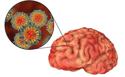 Инфекции мозга