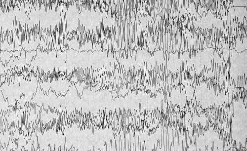 ЭЭГ при приступе эпилепсии хуже от алкоголя