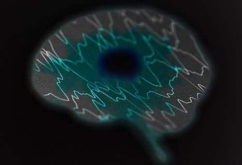 Очаг ишемии в мозгу, вокруг – эпиактивность