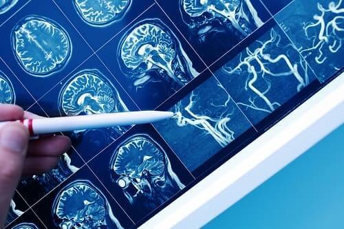 Очаг плохого кровообращения в мозгу на КТ