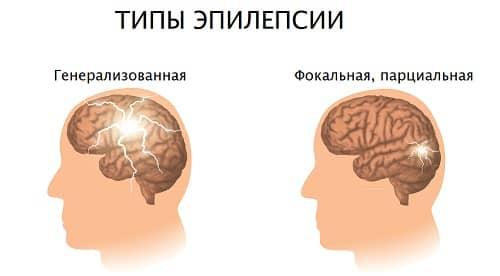 Отличие парциальной эпилепсии ри генерализованной