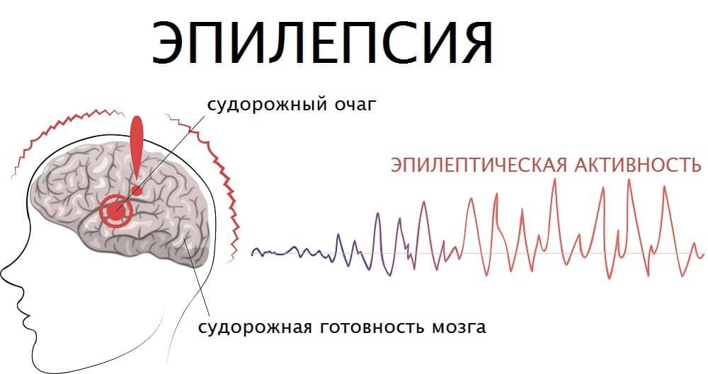 Принцип формирования эпилептической активности импульсации мозга