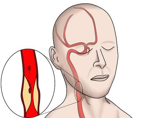 Стеноз шейных сосудов причина мигрени