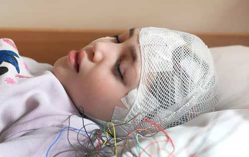 Запись ЭЭГ во время сна у девочки