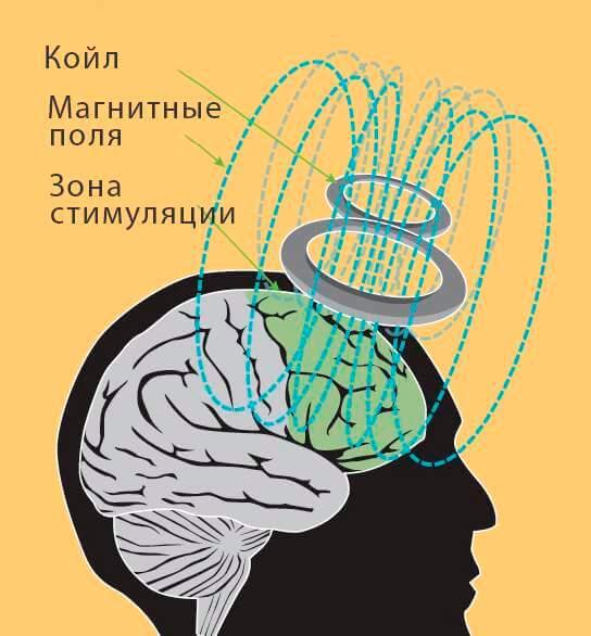 Схематичное изображение процесса магнитной стимуляции мозга