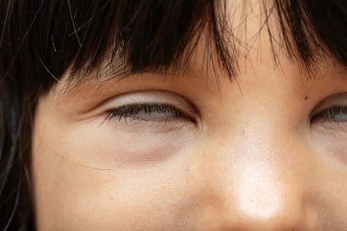 Абсанс - закатывание глаз и дрожание век