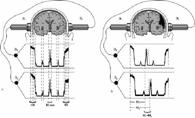 Эхоэнцефалография в норме и при гематоме