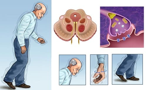 Ключевые аспекты болезни Паркинсона