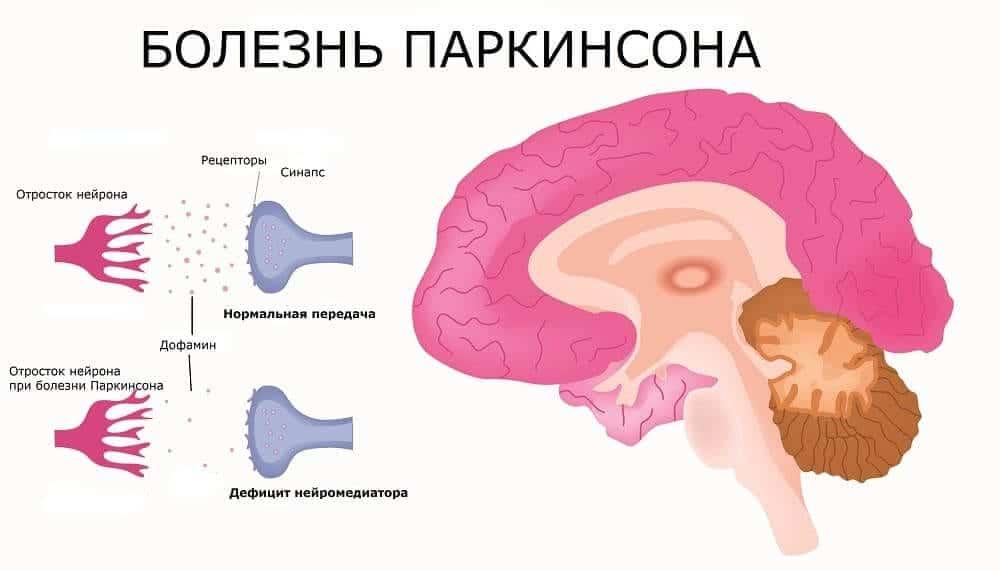 Норма и дефицит синтез дофамина в мозгу