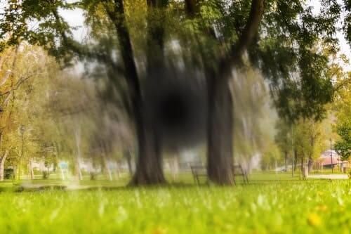 Пропадание поля зрения при осложненной мигрени