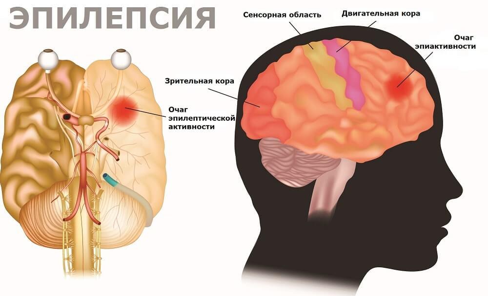 Схема расположения очага эпилепсии в мозгу