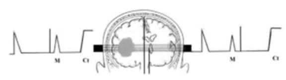 Смещение срединных структур при обьемном процессе больших полушарий головного мозга