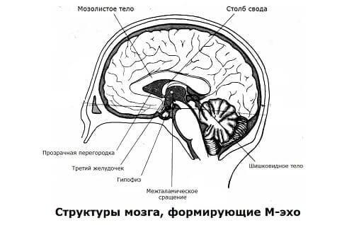 Структуры, формирующие М-эхо