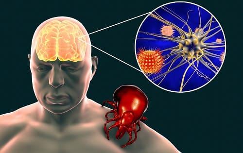 Укус клеща опасен инфекцией мозга