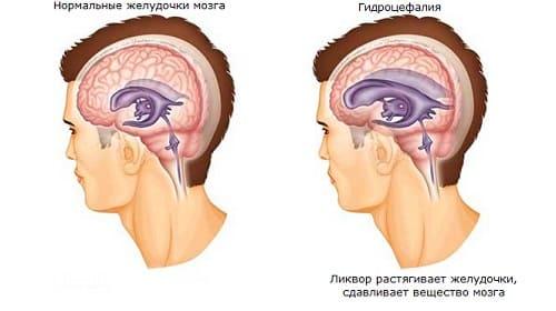 Желудочки мозга в норме и при гидроцефалии