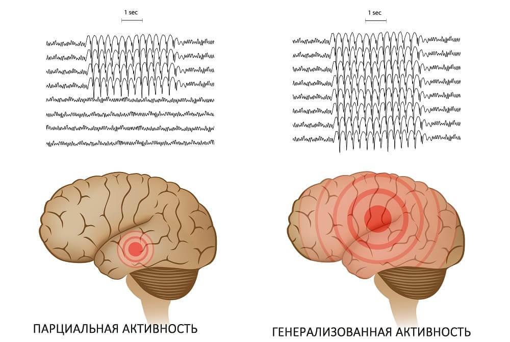 отличие фокальной криптогенной эпилепсии от генерализованнолй