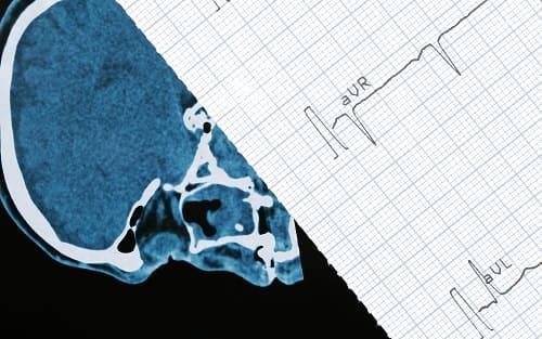 КТ пленка и ЭКГ для анализа врачом