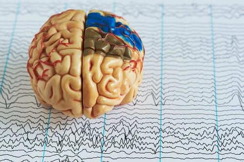Мозг и записанная ЭЭГ с патологией в разных отделах