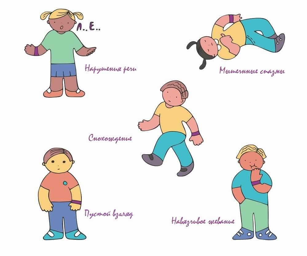 Неявные признаки эпилептического припадка у ребенка