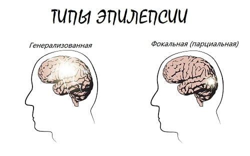 Парциальная и генерализованная типы эпилепсии