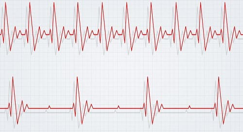 Схема тахикардии и брадикардии на ЭКГ