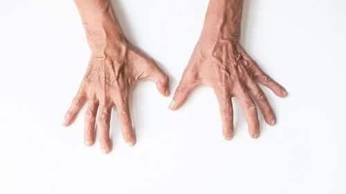 Спазм пальцев рук