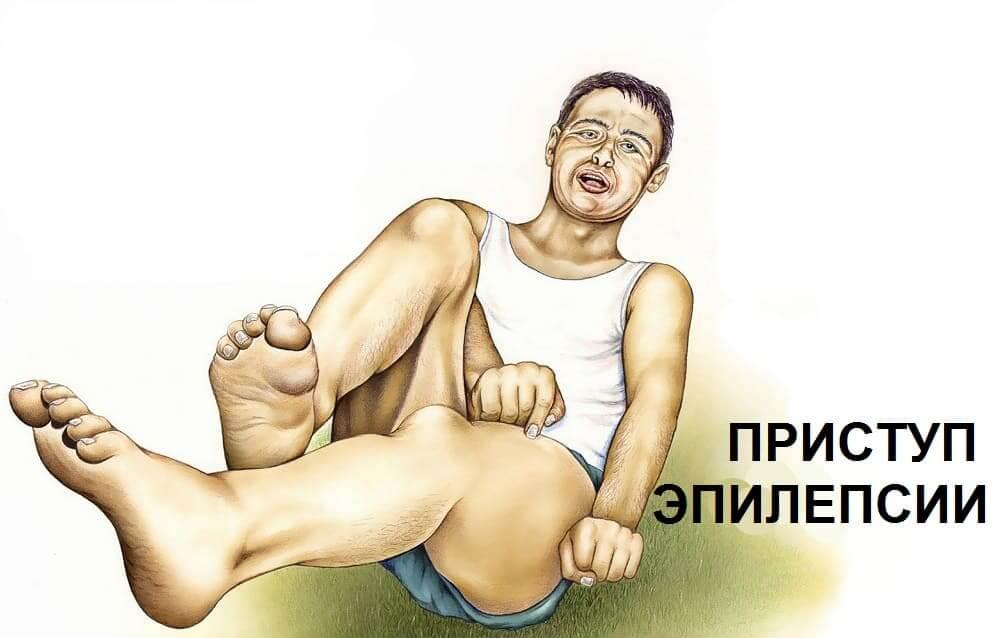 Типичный вид человека в п риступе эпилепсии