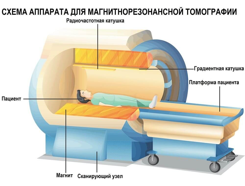 Устройство аппарата для МРТ