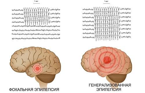 Фокальная и генерализованная эпилепсия в мозгу и на ЭЭГ