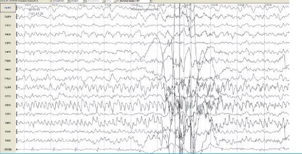 Источник эпилептической активности фокально из гиппокампа