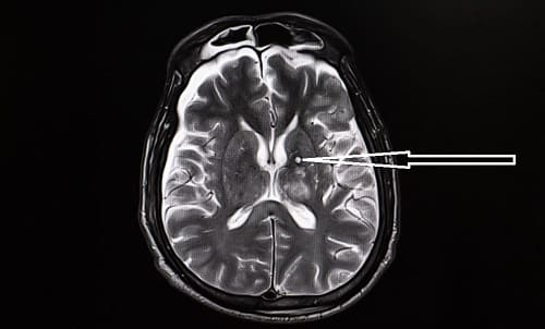 Источник симптоматической эпилепсии на МРТ