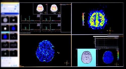 Явления повреждения мозга на МРТ с контрастированием