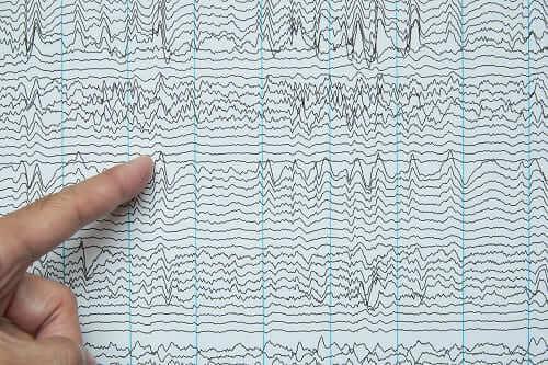 Эпилептиформная активность нейронов на ЭЭГ