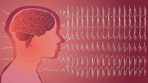 Мозг с рисунком ЭЭГ непонятной патологией