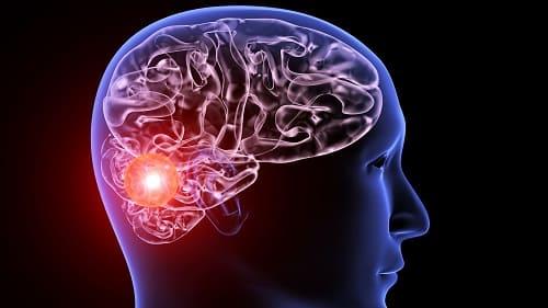 Новообразование в затылочной области мозга