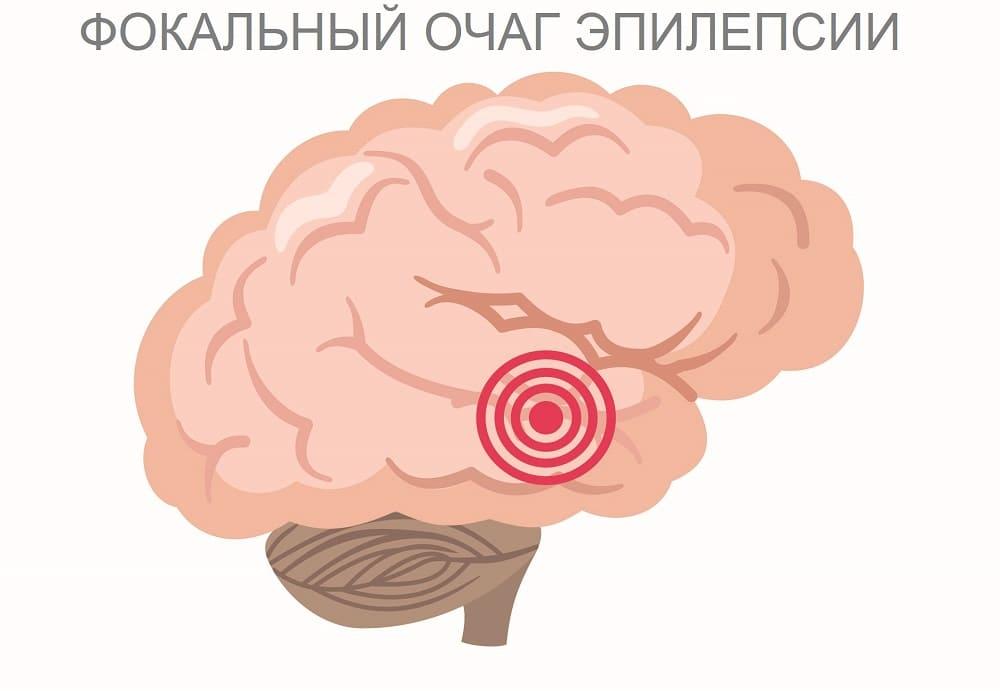 Очаг фокальной парциальной эпилептической активности в височной доле